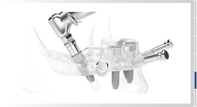 Schritt 5 Zahnimplantation